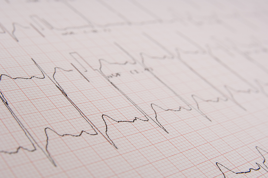 bigstock_Electrocardiogram_814182
