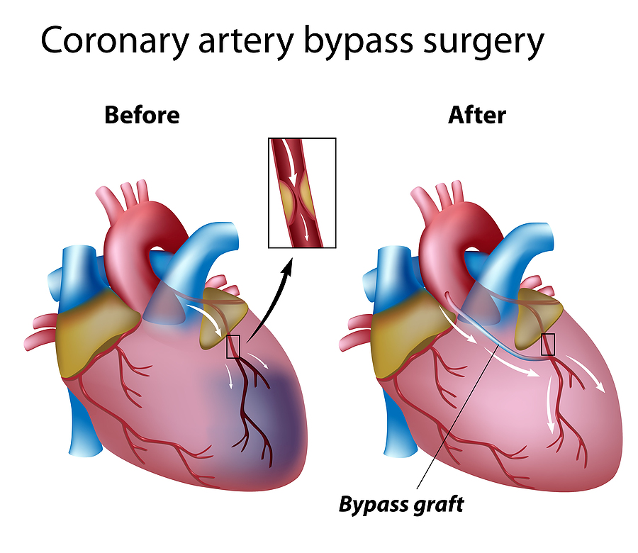 bigstock_Heart_bypass_surgery_25414553